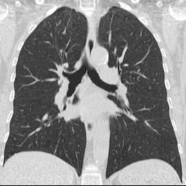 Компьютерноя томография
