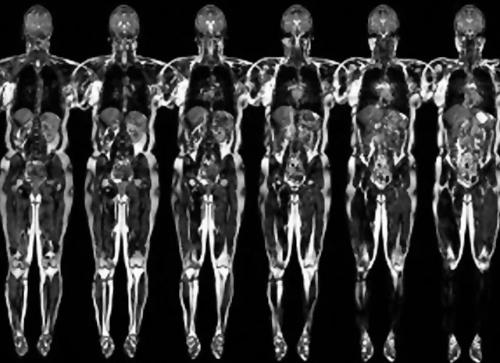 комп'ютерна томографія всього тіла