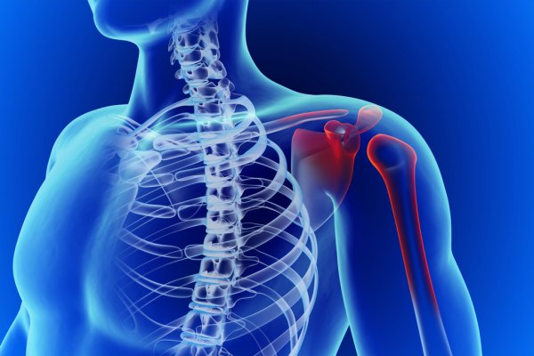 МРТ плечевого сустава сделать в Киеве