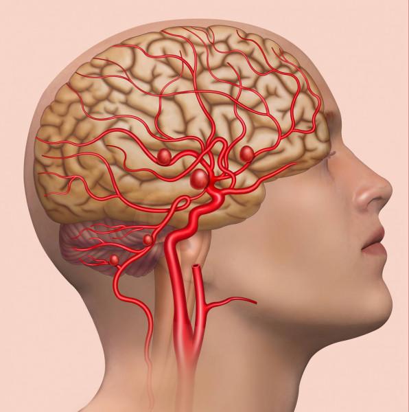МРТ головного мозга с ангиографией в Киеве